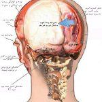 هماتوم های مغزی چیست؟