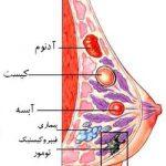 مقاله درمورد سرطان سینه
