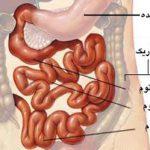 بیماری سلیاک چیست؟