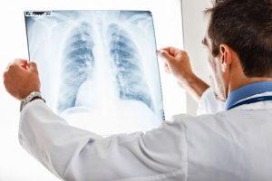 بیماری های عفونی تنفسی
